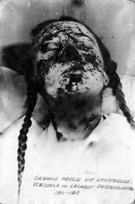 Gewond meisje uit Lichtervelde verzorgd in lazaret van patersklooster, Izegem